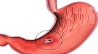 mide ülseri dikkat edilmesi gerekenler